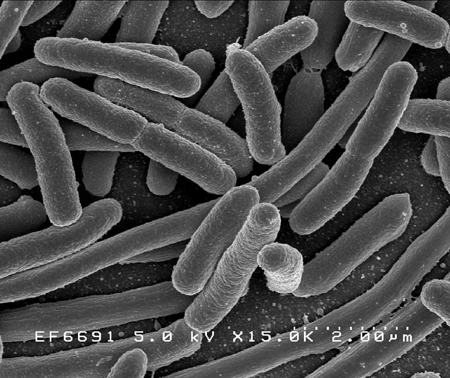 E. coli bacteria (Photo credit: commons.wikimedia.org)
