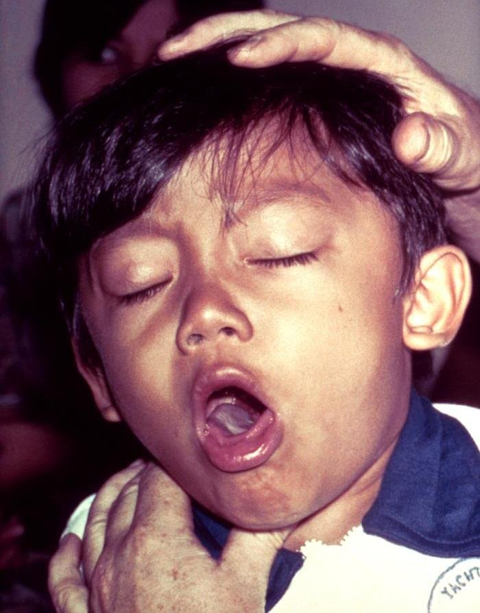 """(photo credit -- """"Pertussis"""" by Unknown / CDC - http://phil.cdc.gov/phil/home.asp ID#: 6378)"""